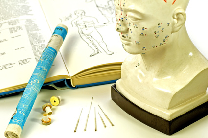 Médecine douce – L'acupuncture